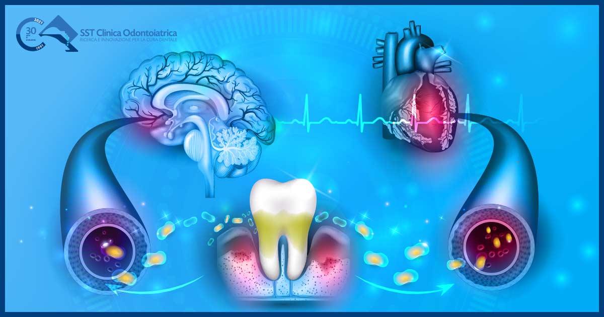 parodontite e coronavirus